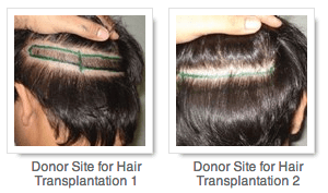 Donor Site for Hair Transplantation