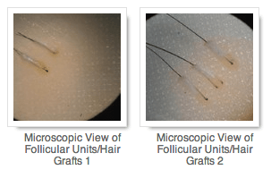 Microscopic View of Follicular Units:Hair