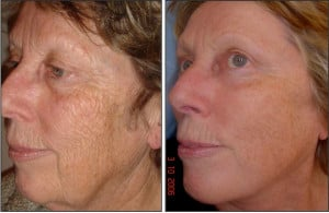 Before and After Fraxel Laser