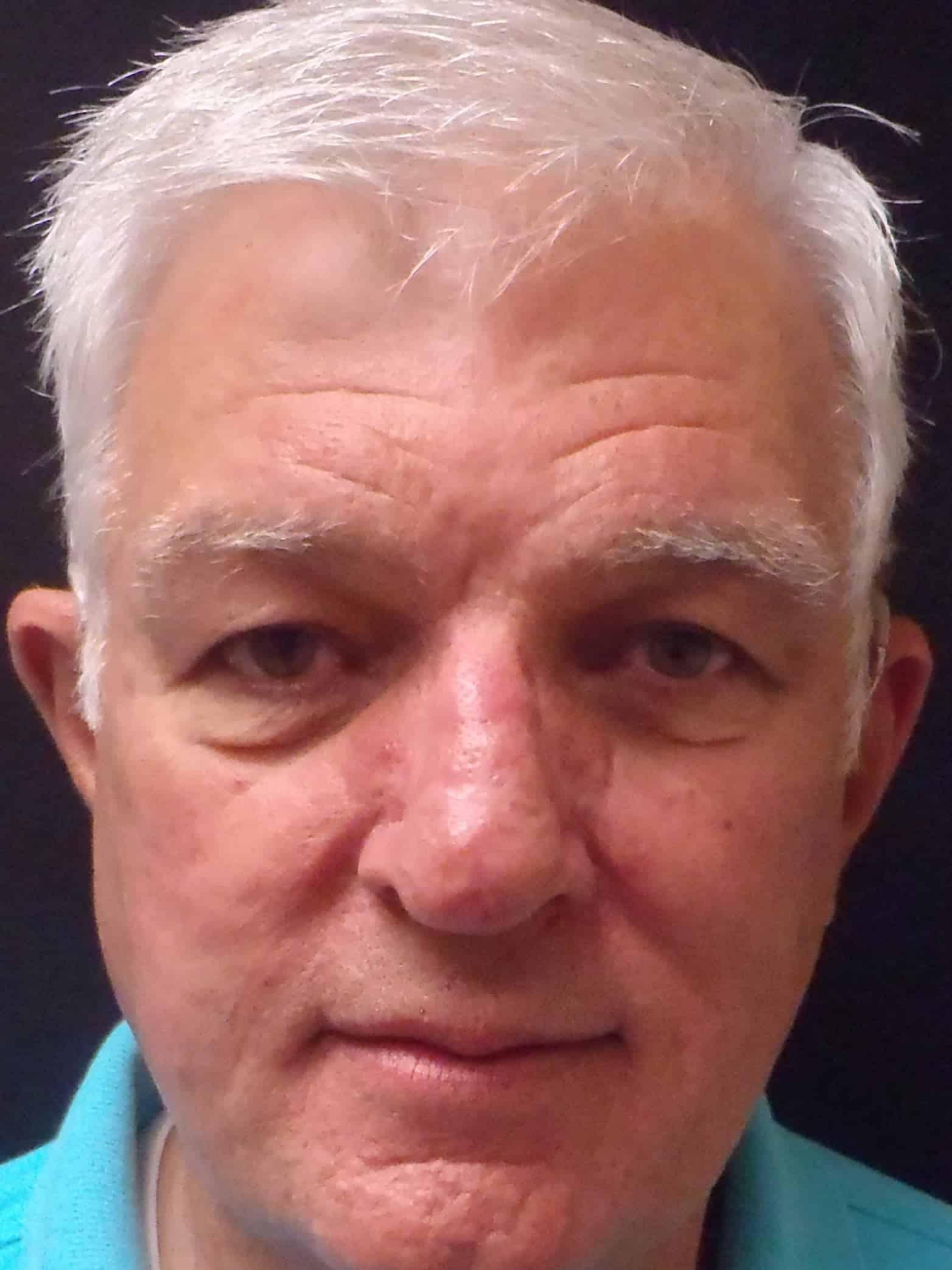 Rhinophyma Patient Testimonial