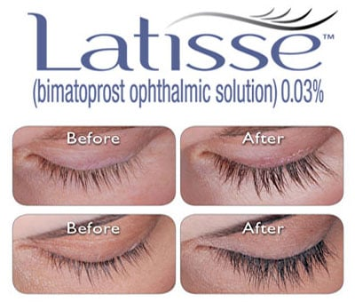 Replenish Your Eyelashes with Latisse